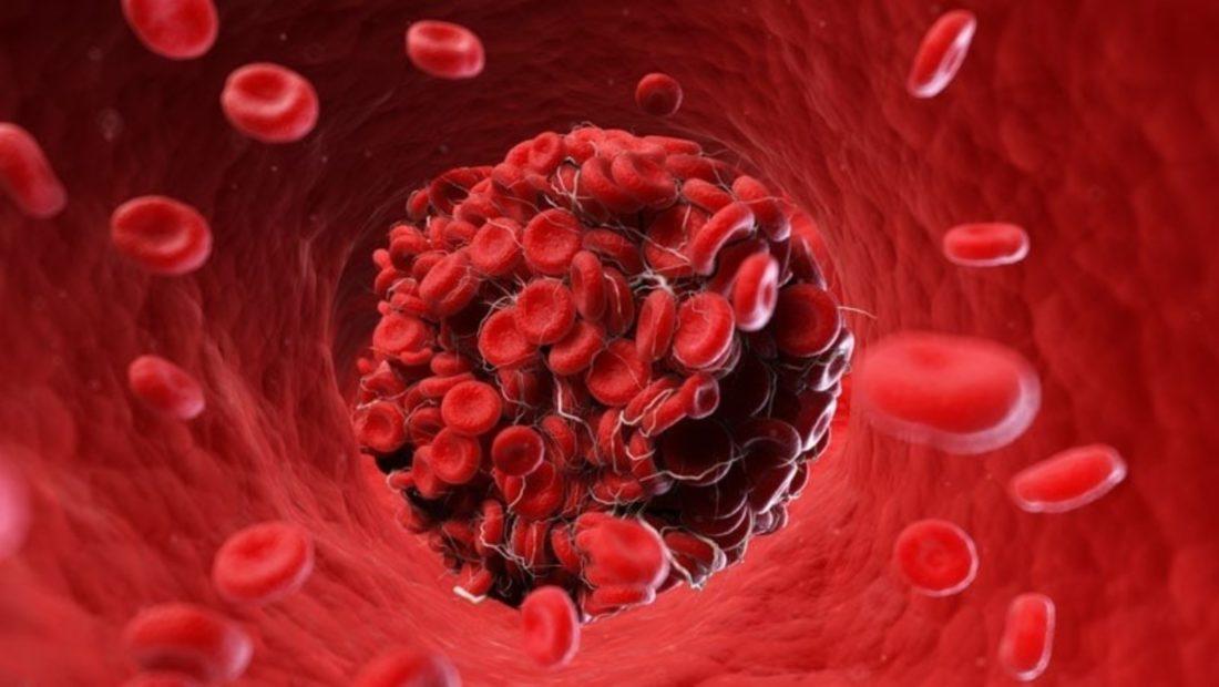 Mpiksje gjaku 1100x620